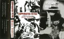 SUPPURATED FETUS - Basic Instinct